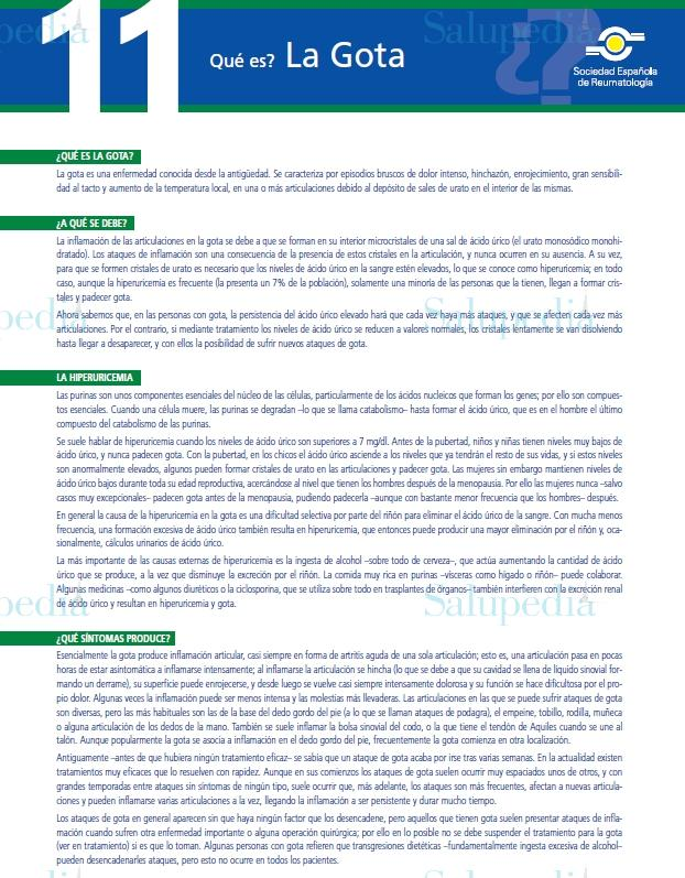 Cache grafica http://www.ser.es/ArchivosDESCARGABLES/Folletos/11.pdf
