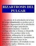 Captura de http://www.traumazamora.org/infopaciente/rizartrosis/rizartrosis.htm
