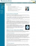 Captura de http://www.radiologyinfo.org/sp/info.cfm?pg=mammo