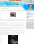 Captura de http://www.labioleporino.es/labio_leporino.php
