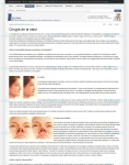 Captura de http://www.secpre.org/index.php?option=com_content&view=article&id=116:rinoplastia&catid=36:cirugiaestetica&Itemid=75