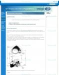 Captura de http://sao.org.ar/Patolog%C3%ADasyAfecciones/Queratocono/tabid/303/language/en-US/Default.aspx